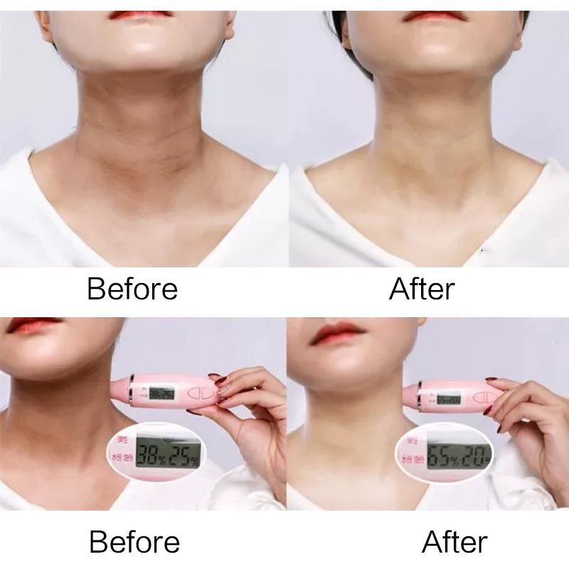 Anti Aging Neck Mask - 70% OFF!