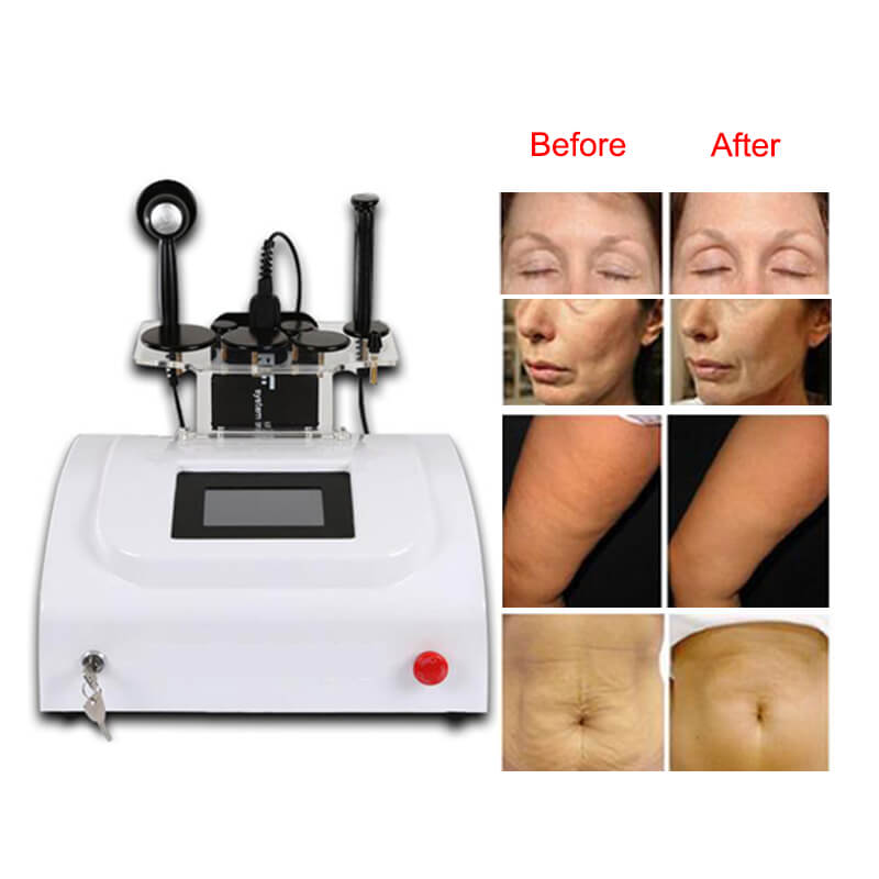 7 Probes Monopolar RF Radio Frequency Skin Rejuvenation Faster Beauty machine