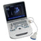 Portable Full Digital Ultrasound Scanner Diagnostic System with Convex Probe