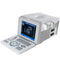 Portable Full Digital Ultrasound Scanner without Probe