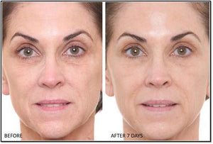 Facial Lifting Radiance Roller