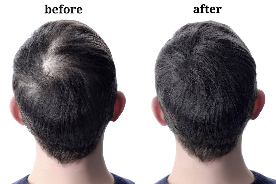 Instant Solution to Reversing Thinning Hair