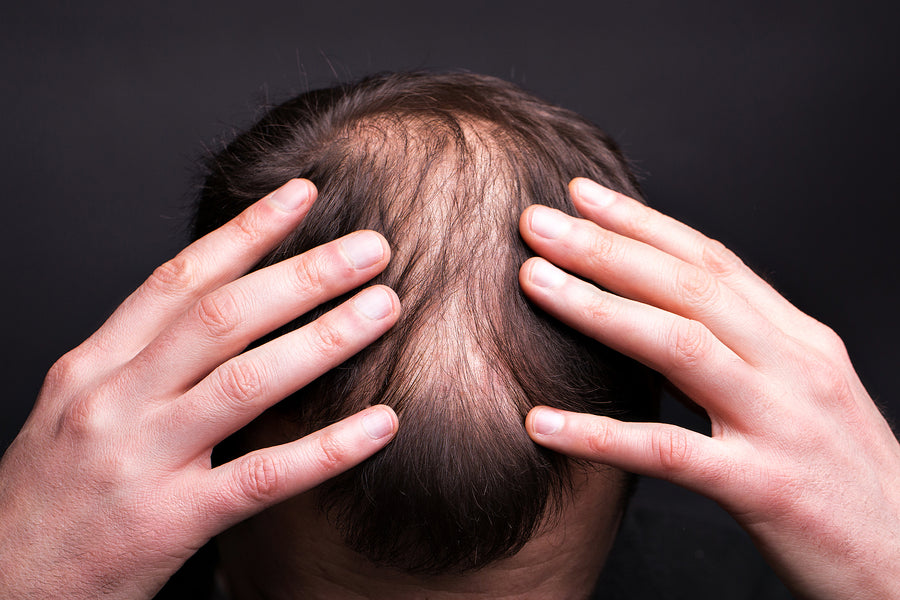 Male Pattern Baldness Explained