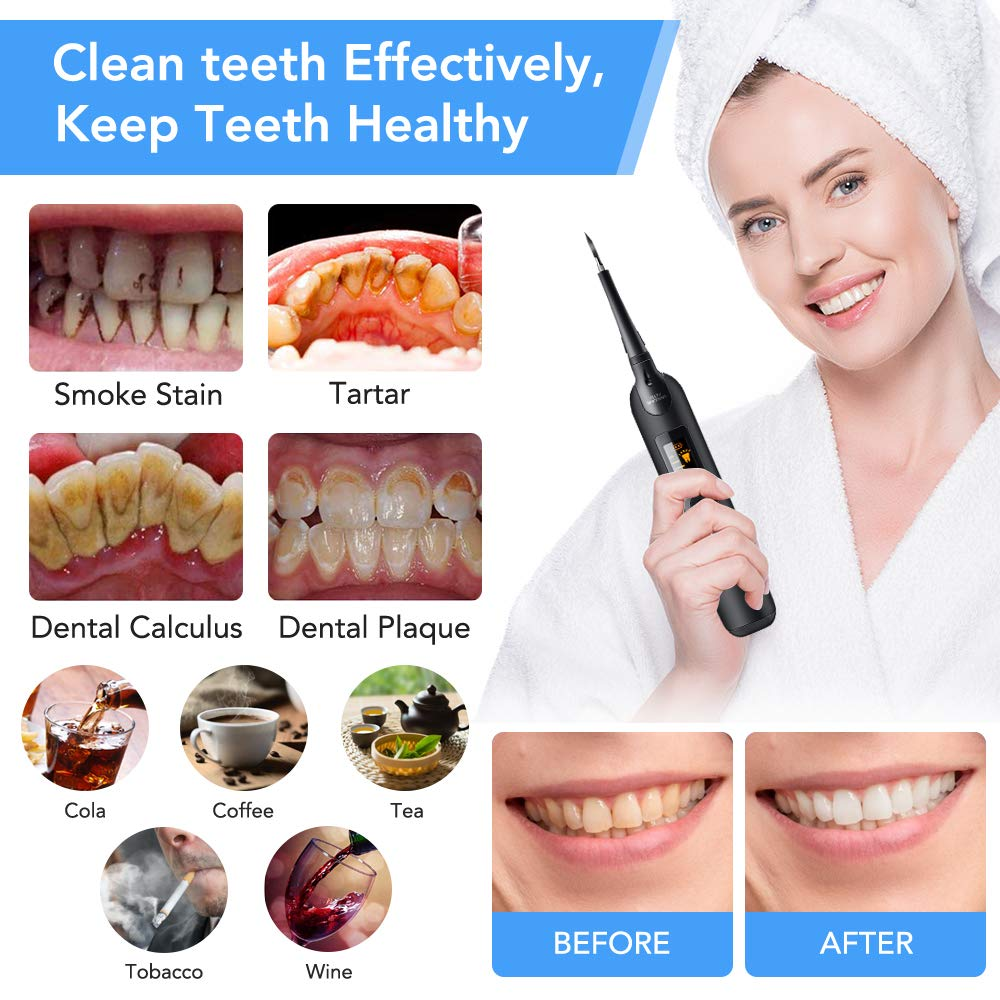 Electric Dental Calculus Remover with LED Screen, Tooth Cleaning Kit with 3 Cleaning Heads & Mouth Mirror, 5 Intensities Suitable