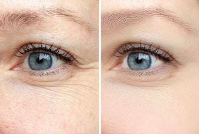 Follow These Steps to Get Rid of Under Eye Wrinkles