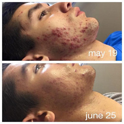 LED Light Therapy for Acne Before and After