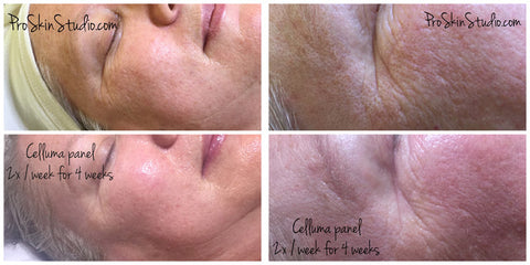 LED Light Therapy Before and After Wrinkles