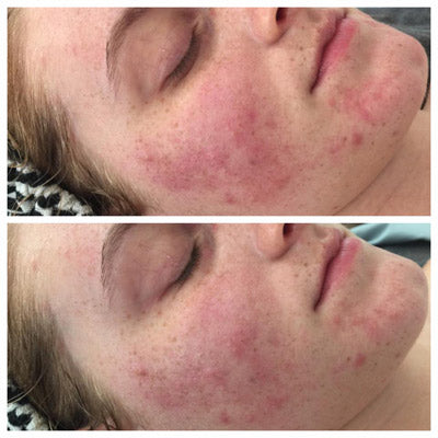 thirty minutes before and after red light therapy