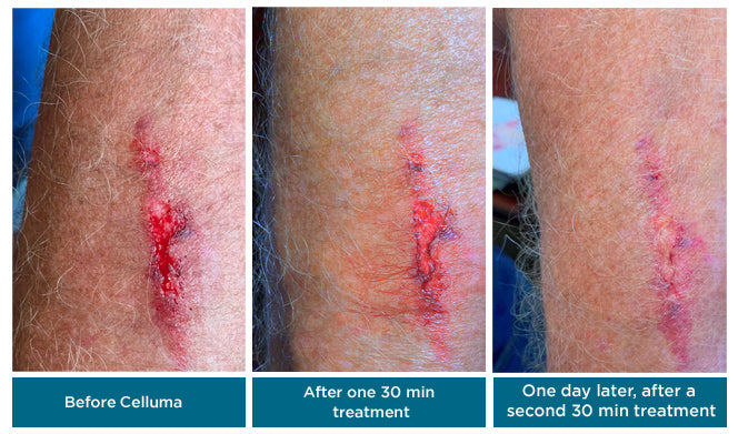 LED Light Therapy Wound Healing Results