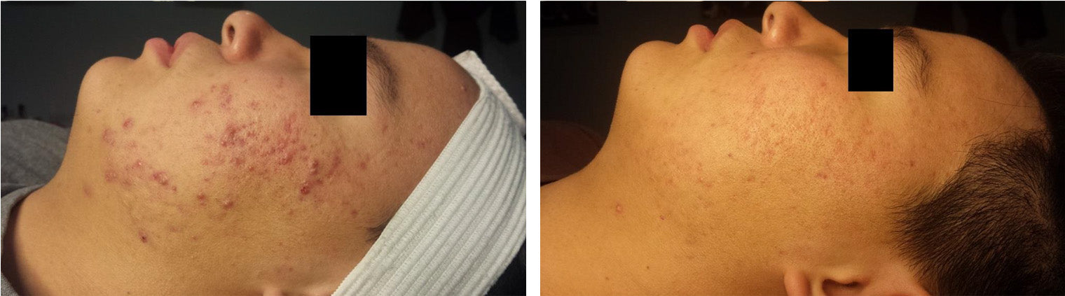 Acne Treatment Before/After