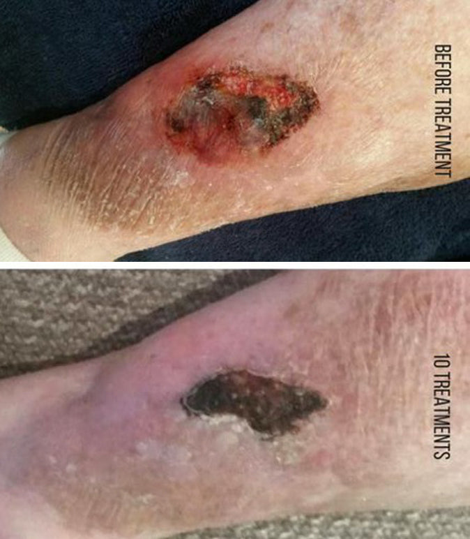 Wound Healing Before/After