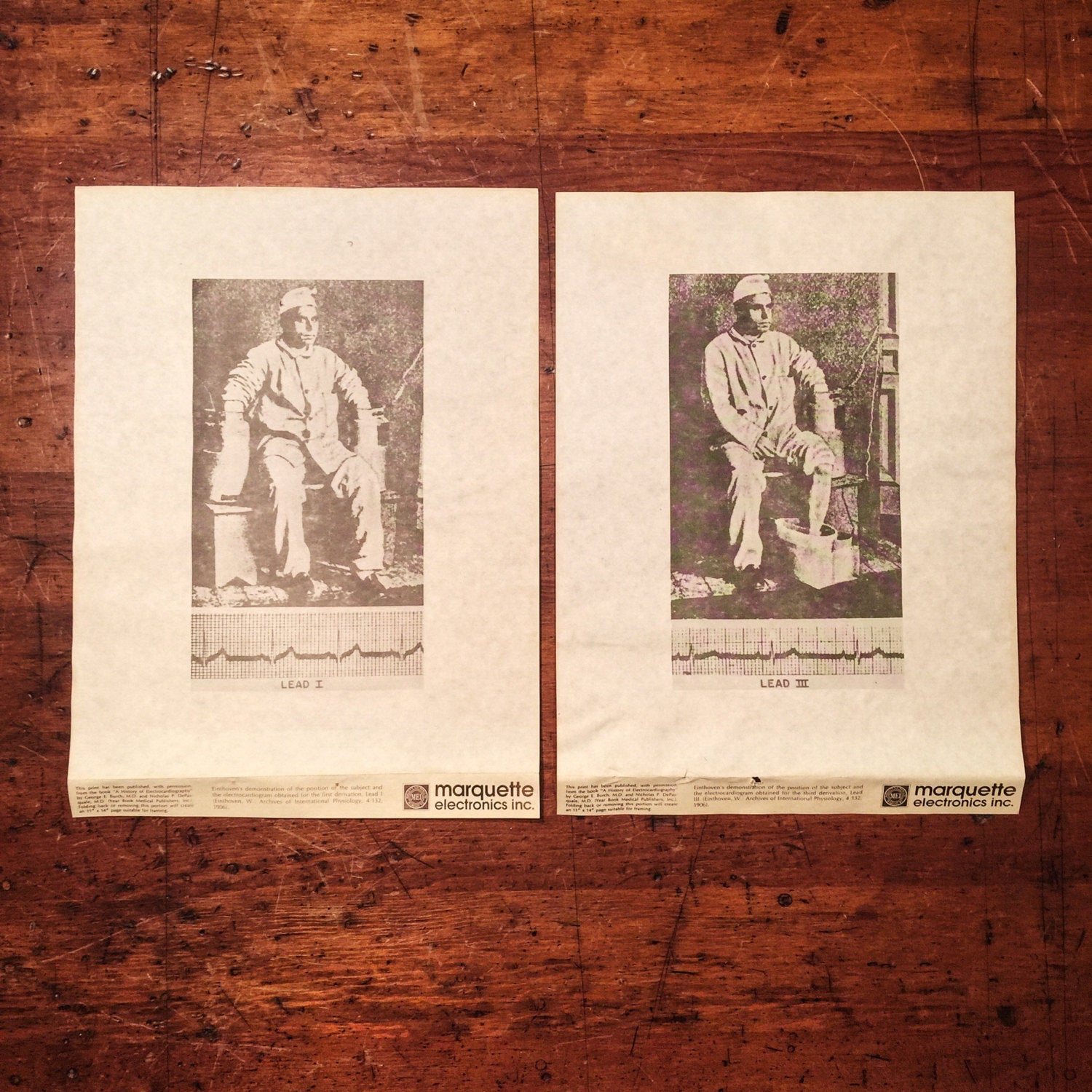 Macabre Art Posters Prints -  Rare Human Experimentation Posters (2) - Medical Subject - Electrocardiography - 1960s - Einthoven - Burch