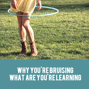 why hula hooping causes bruising