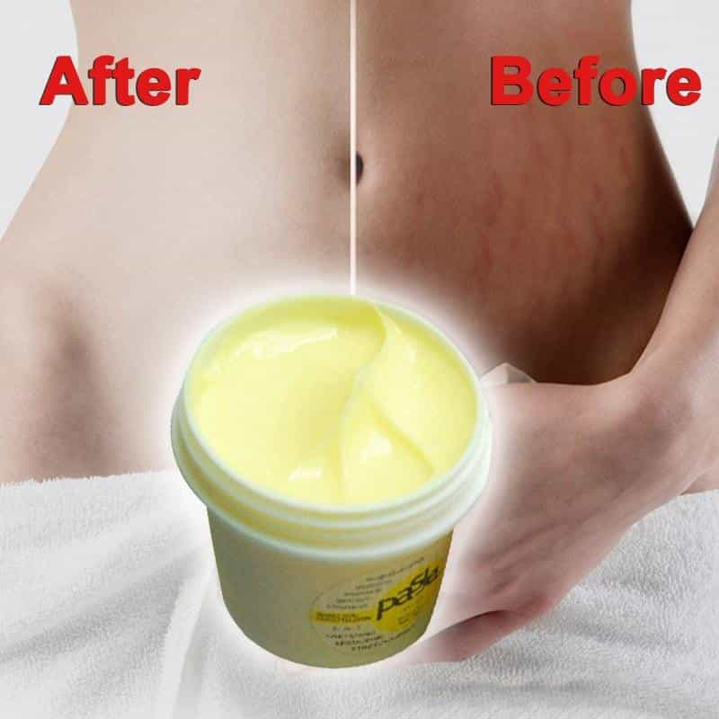 2019 Thailand Skin Body Cream Remove, [variant_title], [option1], [option2], [option3] - anythinganyware
