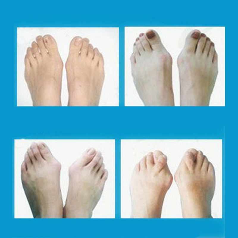 Daily Silicone Gel Foot, [variant_title], [option1], [option2], [option3] - anythinganyware