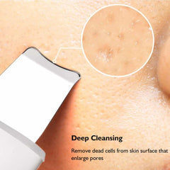 Ultrasonic Skin Scrubber Deep Cleaning Face Scrubber, [variant_title], [option1], [option2], [option3] - anythinganyware