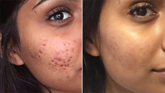 Acne Before & After 2