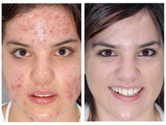 Acne Before & After