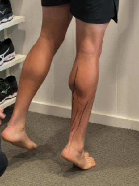 Tight Calves or Stiff Ankles? Here is a Self Test & 4 Important Solutions