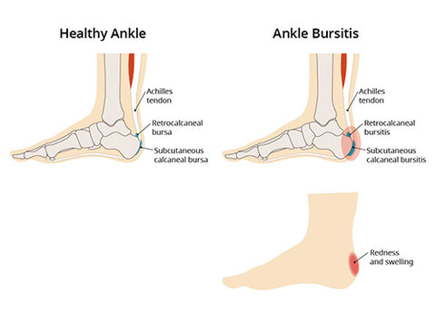 How to fix Insertional Achilles