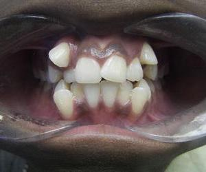 before picture of teeth
