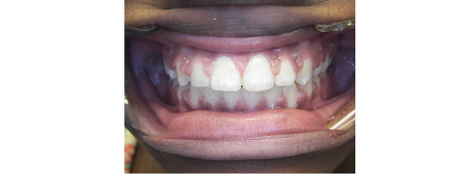 after picture of teeth