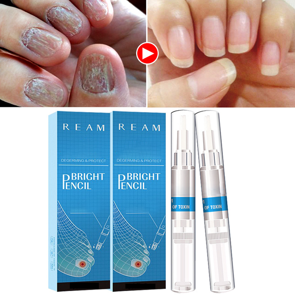 Biological Repair Nail Fungus Treatment Pen-Health Care-carsoho.com-carsoho
