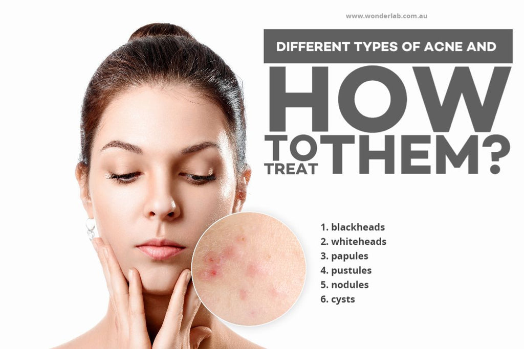 Different Types of ACNE and How to Treat Them?