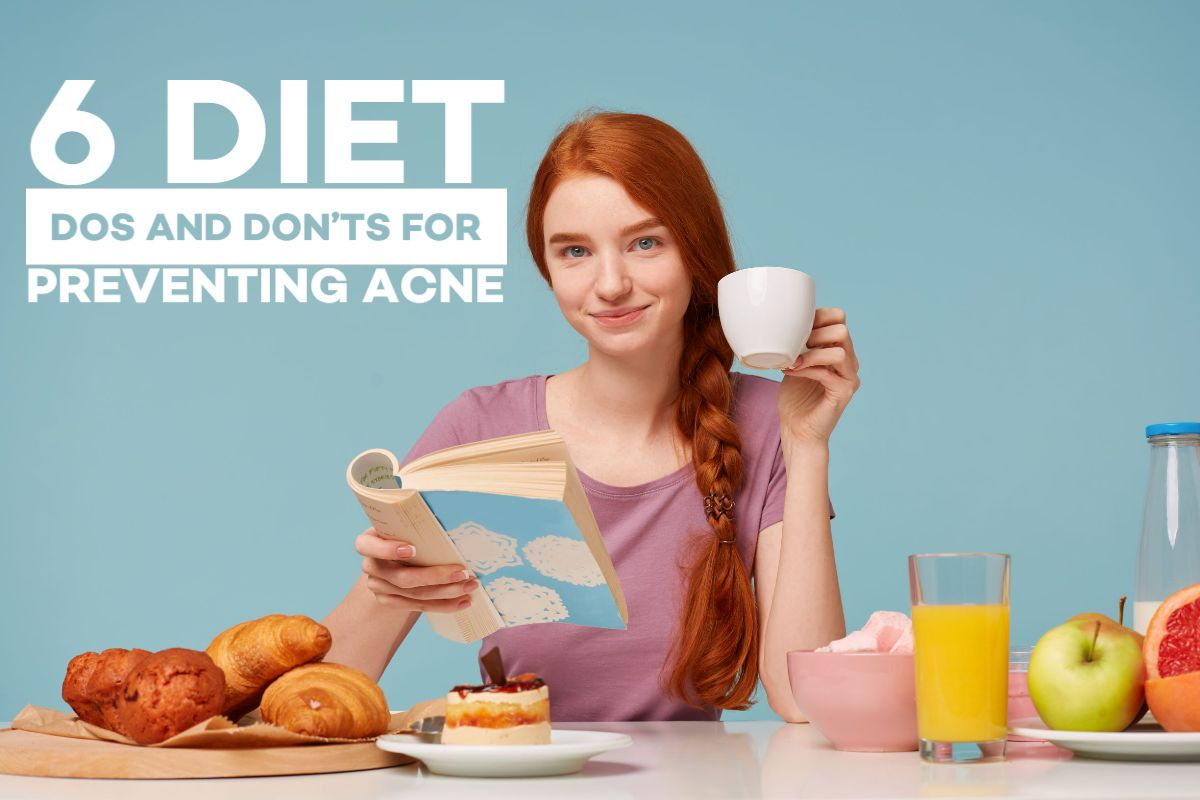 6 Diet Dos and Don'ts for Preventing Acne