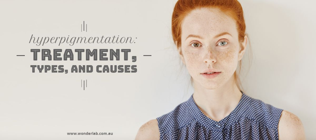 Hyperpigmentation Treatment types and causes