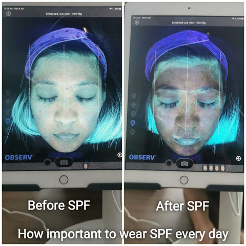 Importance to wear SPF every day