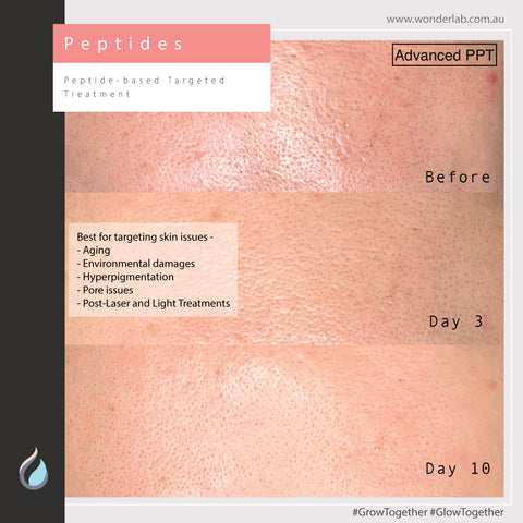 Peptide-based Targeted Treatment - InfusionDerm™