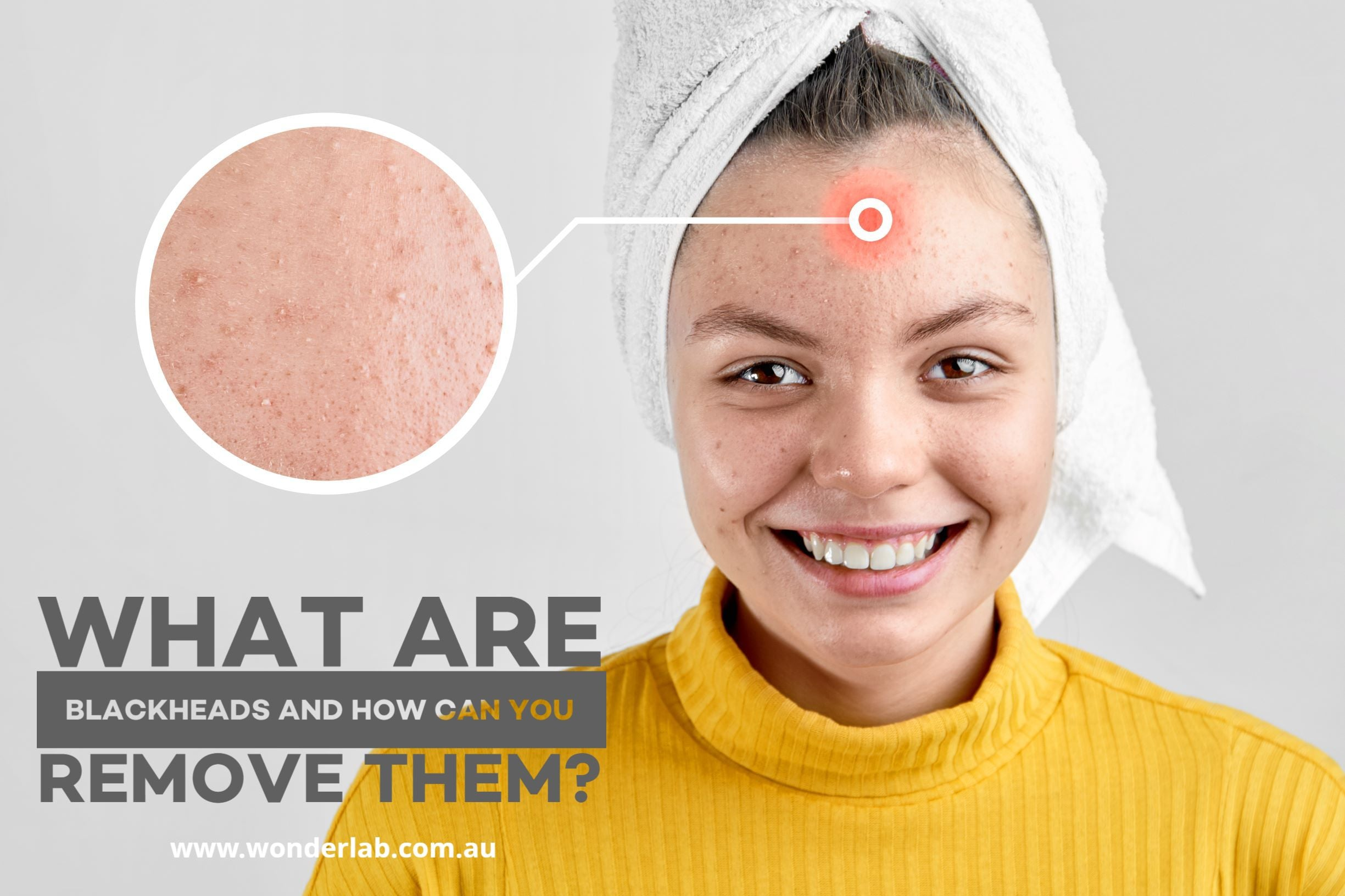What are blackheads and how can you remove them