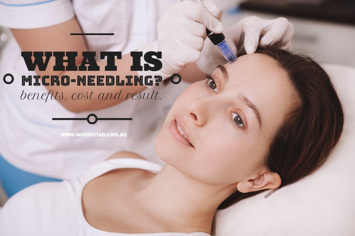 What is Micro-Needling Benefits, Cost and Result.