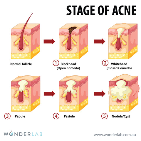 Different stage of acne