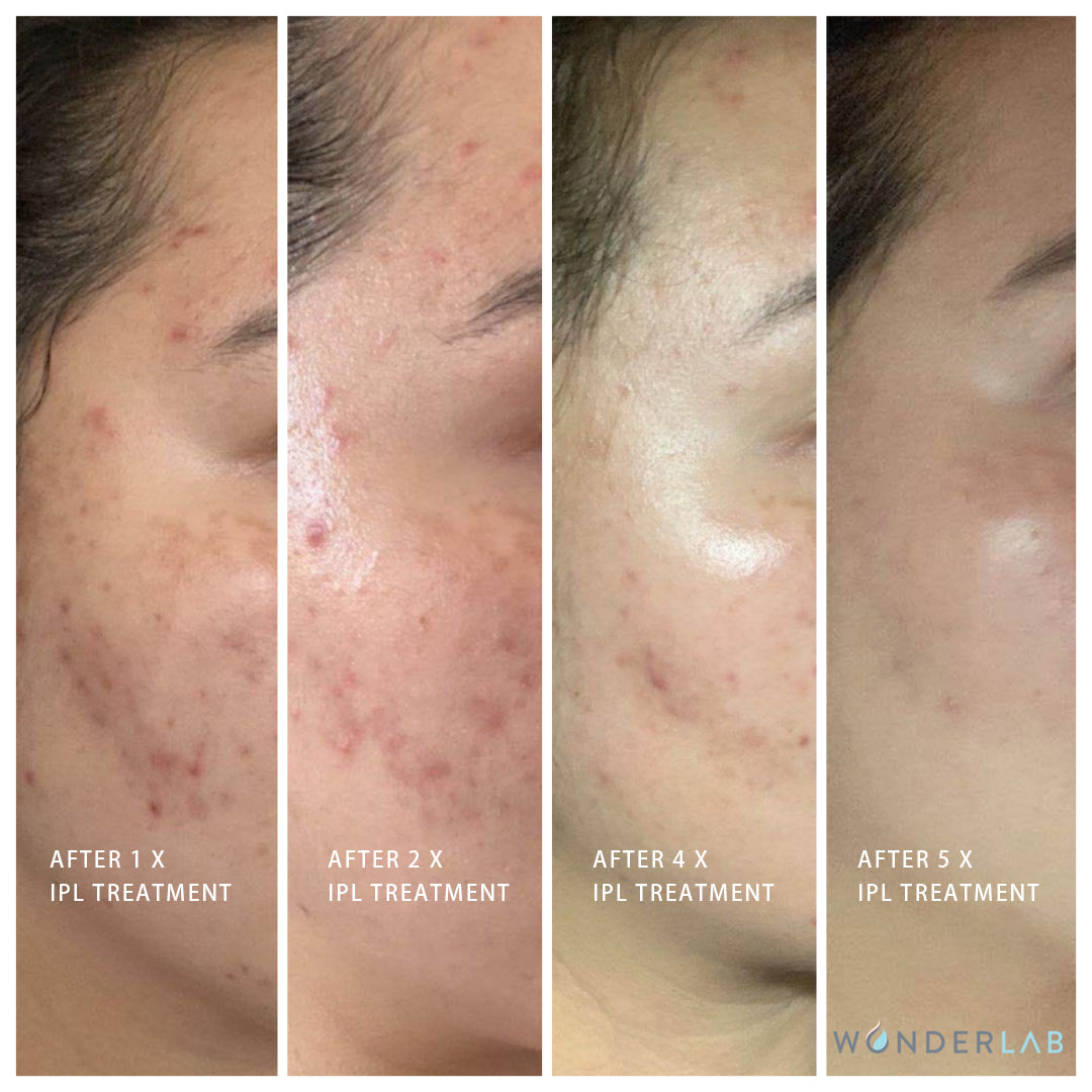 IPL Acne Treatment