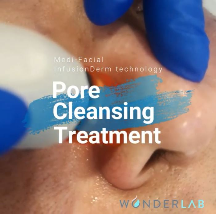 MEDI-FACIAL® - Pore Cleansing Express Treatment