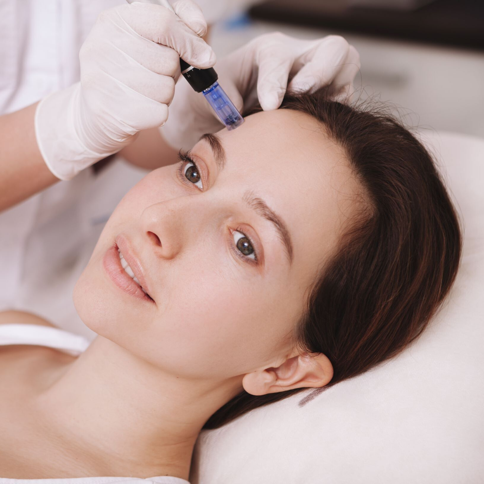 NO FACE® Micro-Needling Treatment