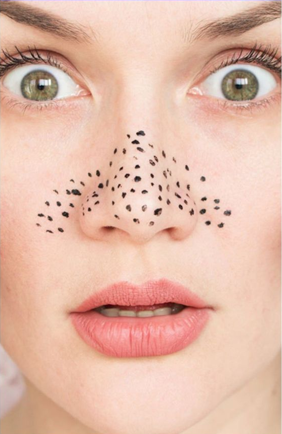 4 Reasons Not To Squeeze Blackheads