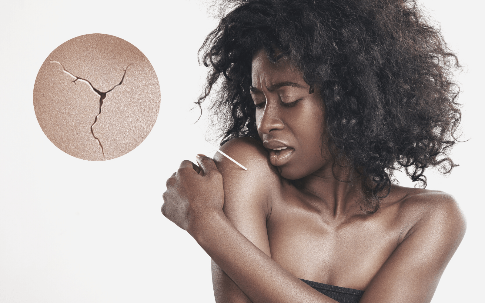 woman holding arm with close up of dry skin patch