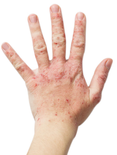 choose natural skincare to avoid eczema