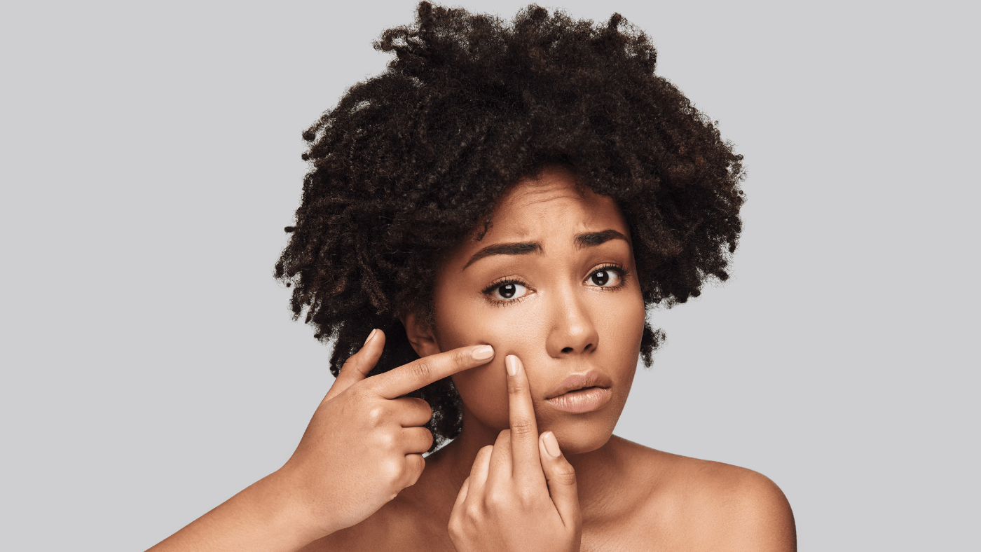 black girl with afro stressed about skin