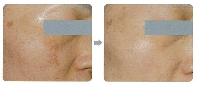 HydraBright Facial Results 1