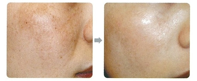 HydraBright Facial Results 2