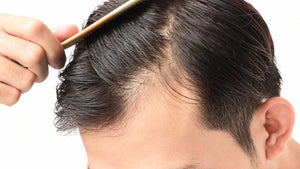 Stop Hair Loss, Is There Hope?