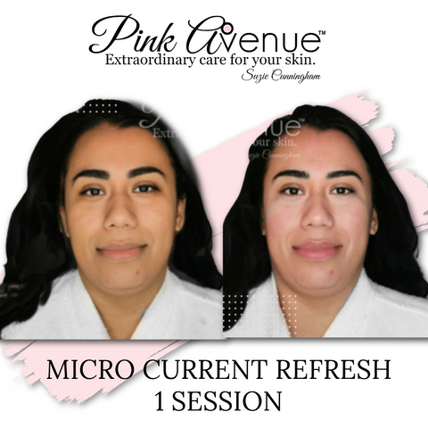 Best Micro current Facial, Before and After, Pink Avenue, Toronto Canada