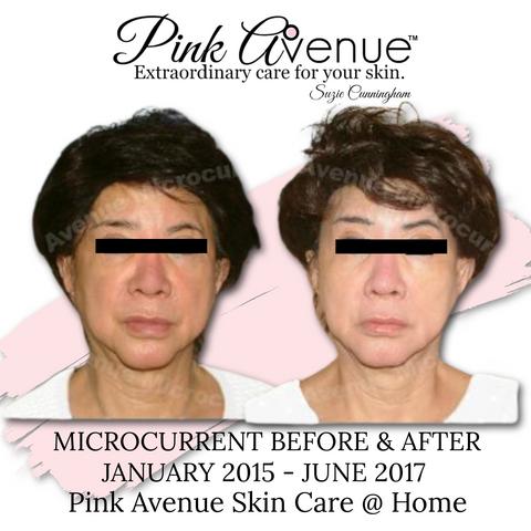 Best Micro Current Facial, Pink Avenue, Toronto