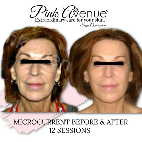 Best Micro Current Facial. Pink Avenue, Toronto Canada