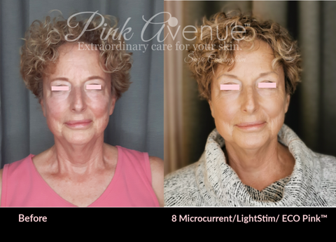 LightStim og Microcurrent Facials, Toronto, ON