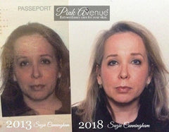 Light Stim Before-and-After، Pink Avenue Skin Care، Toronto، ON